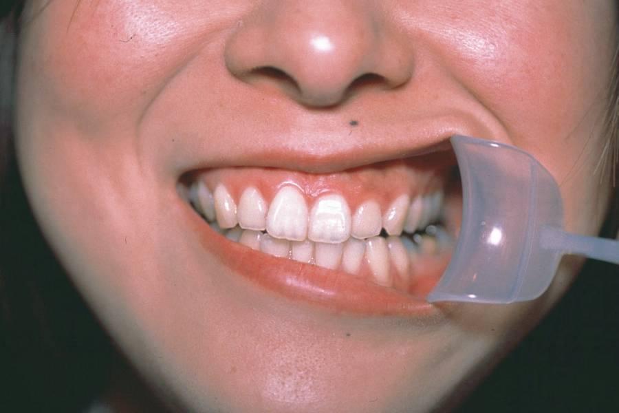 唇開口器ワイダー・チ・ビの画像